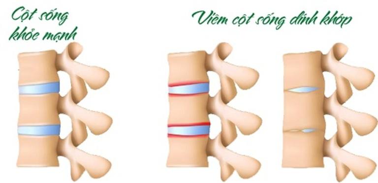 Viêm cột sống dính khớp thường dẫn đến gù cột sống và ảnh hưởng rất nhiều đến khớp háng gây khó khăn trong di chuyển.