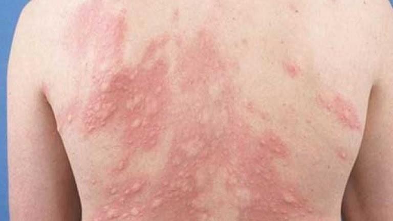 Dị ứng mề đay khiến bệnh nhân nổi nhiều mẩn đỏ theo vùng