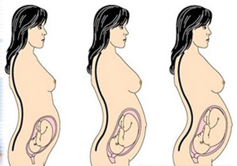 Sự phát triển về kích thước và vị trí của thai nhi chèn ép lên dây thần kinh tọa gây đau nhức