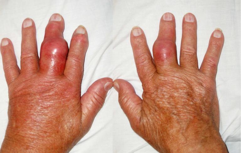 Nổi cục u ở khớp ngón tay có phải bệnh gout