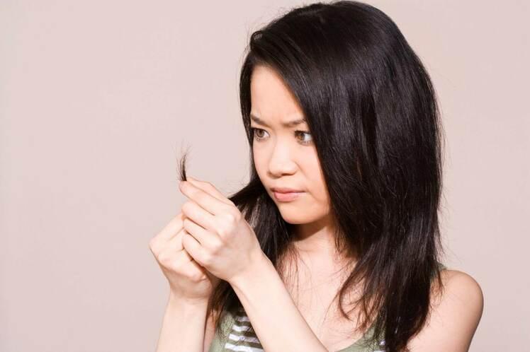 Rụng tóc ở nữ giới ngay từ khi dậy thì gây ra sự tự ti