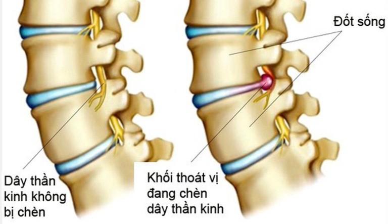 Thoát vị đĩa đệm gây chèn ép lên dây thần kinh là triệu chứng thường gặp ở nhiều người