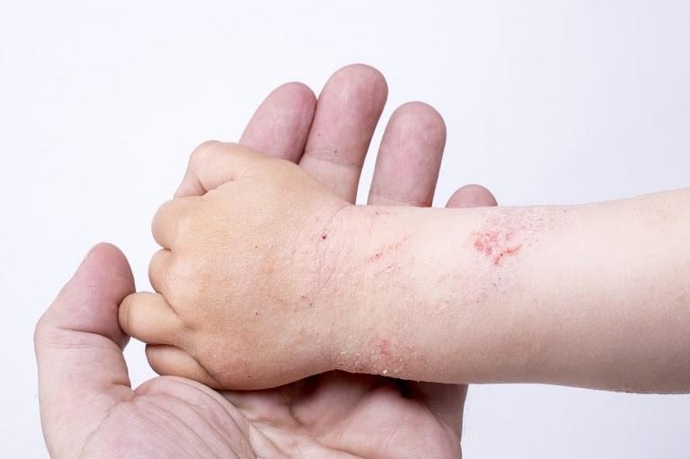 Sử dụng thuốc Nam chữa dị ứng cơ địa an toàn, ít tác dụng phụ