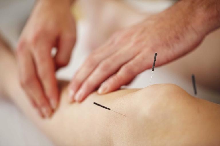 Châm cứu tác động vào huyệt vị trên cơ thể giúp cải thiện tình trạng gai khớp gối