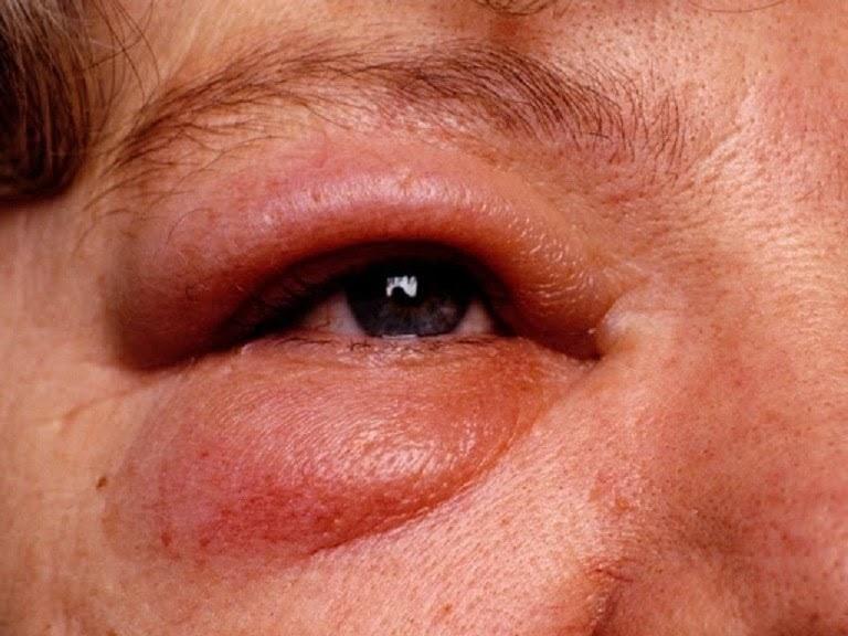 Phù Quincke là triệu chứng dị ứng thuốc nguy hiểm