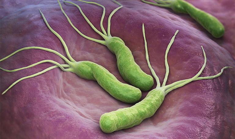 nhiễm trùng vi khuẩn HP do đâu
