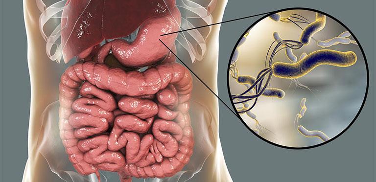 vi khuẩn hp dương tính có nguy hiểm không