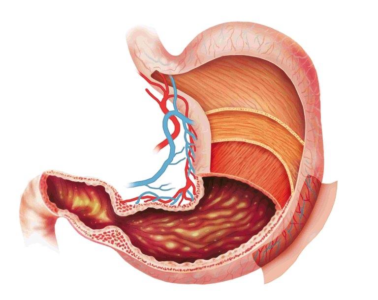 Viêm dạ dày mãn tính rất nguy hiểm