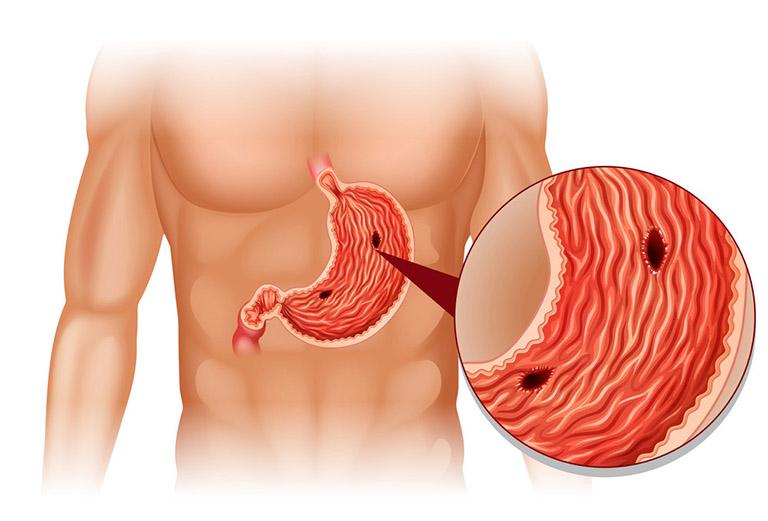 Viêm loét dạ dày nếu không được tiến hành điều trị kịp thời có thể gây ra nhiều biến chứng nguy hiểm làm ảnh hưởng xấu đến chức năng của dạ dày và sức khỏe của người mắc phải