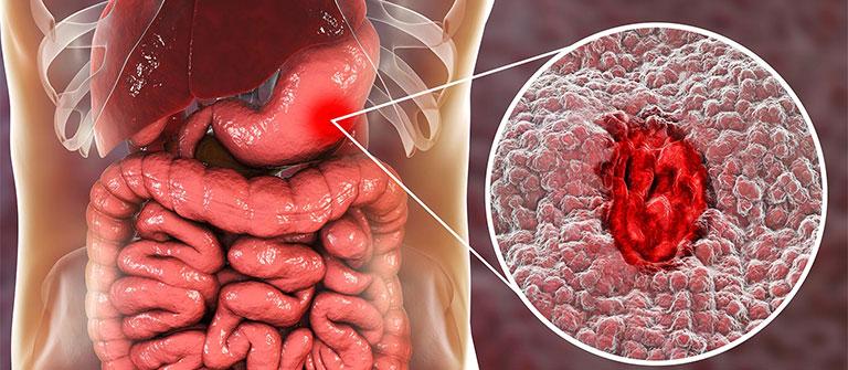 biến chứng của bệnh viêm loét dạ dày