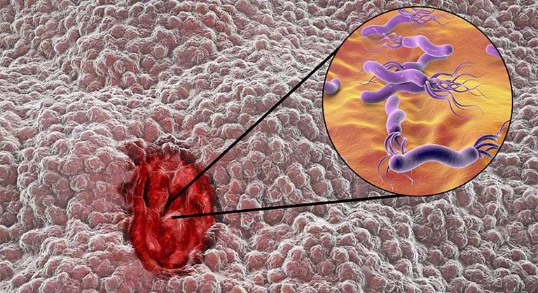 cách chữa viêm loét dạ dày