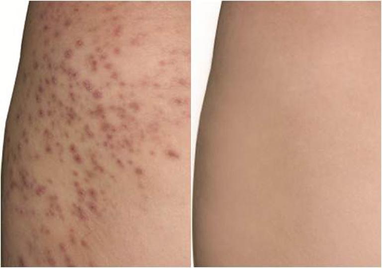 Tình trạng da của chị Hương đã cải thiện rất nhiều sau khi điều trị tại Trung tâm Da liễu Đông y Việt Nam