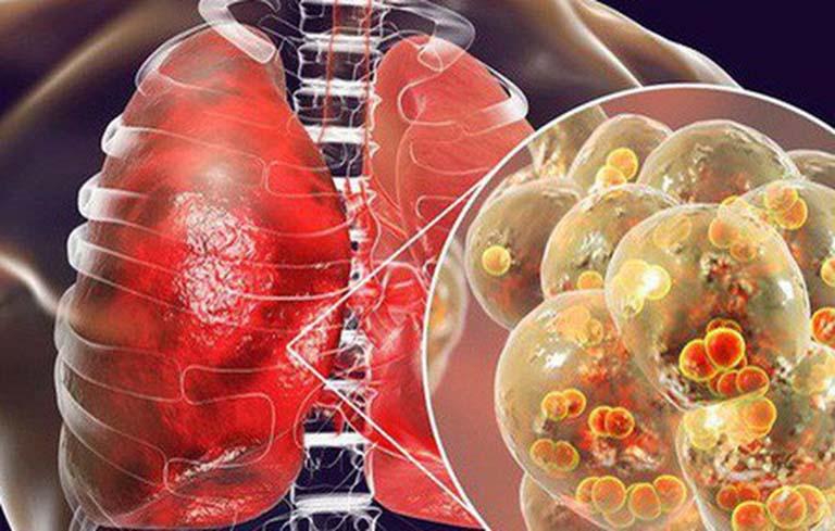 Viêm phổi là tình trạng phổi bị nhiễm trùng, nhu mô phổi đông đặc và tổ chức phế nang bị tổn thương