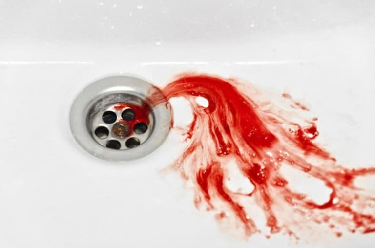 Xuất huyết dạ dày nôn ra máu