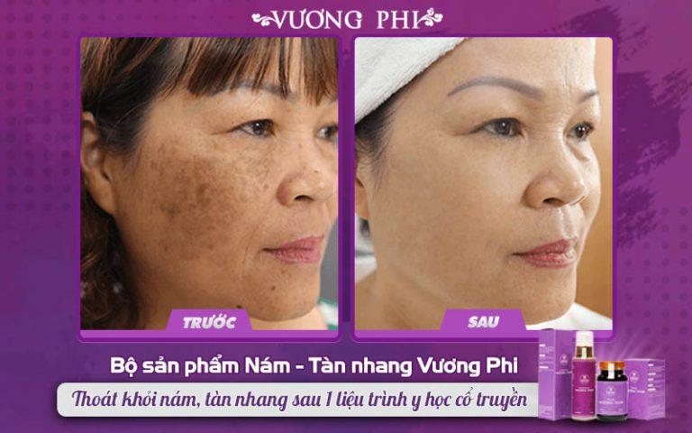 Bộ sản phẩm Vương Phi xử lý tốt các trường hợp nám mảng, nám chân sâu lâu năm ở phụ nữ trung niên