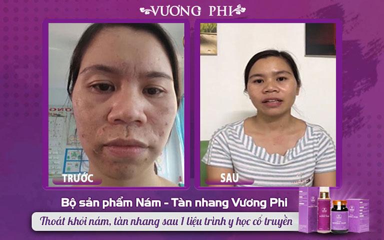 Hình ảnh khác biệt TRƯỚC - SAU sử dụng bộ sản phẩm Vương Phi của chị Nụ