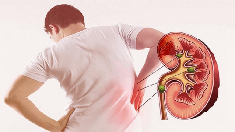 Đau vùng lưng mạn hông là 1 trong những triệu chứng của bệnh