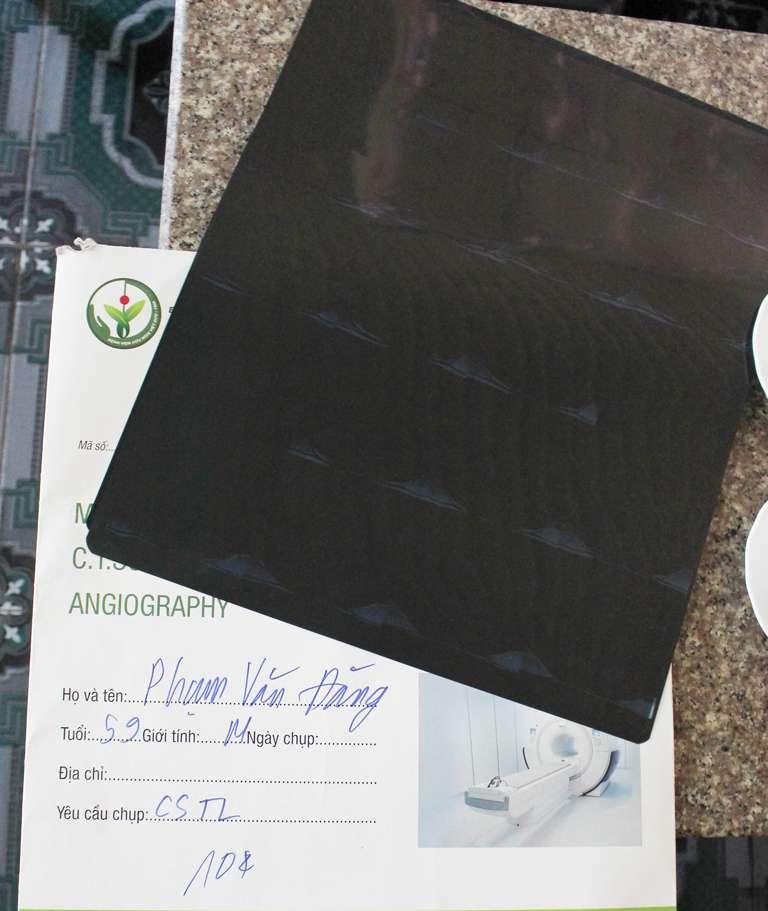 Hồ sơ bệnh án của chú Đăng khi khám tại bệnh viện Việt Đức