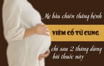 Mẹ bầu khỏi bệnh viêm cổ tử cung