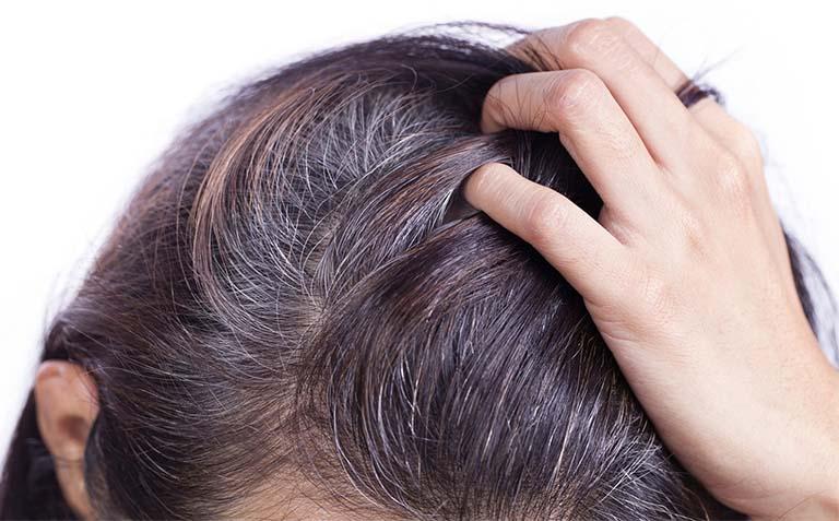 14 bài thuốc dân gian trị tóc bạc sớm hiệu quả từ các thảo dược