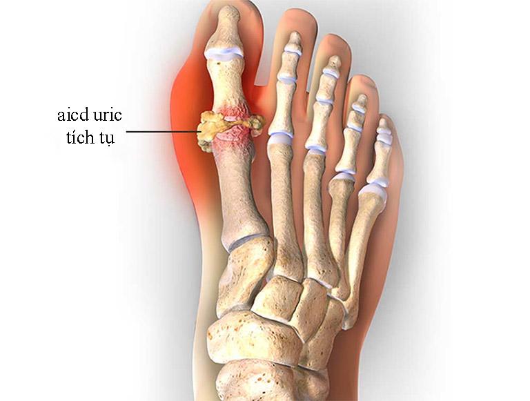 Nguyên nhân chính gây ra bệnh gout là do sự dư thừa của acid uric trong máu và không thể đào thải hết ra khỏi cơ thể
