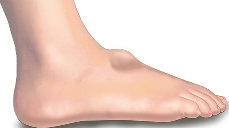 Nang hạch ở chân