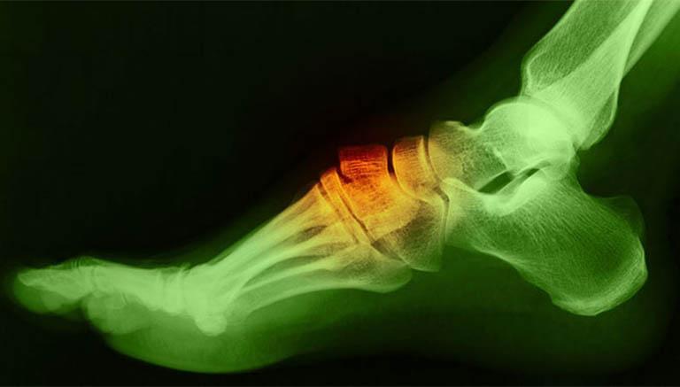 Bị nổi cục ở mu bàn chân và các bệnh lý liên quan