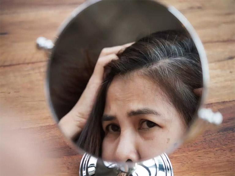 Tóc bạc sớm không chỉ mất giá trị thẩm mỹ mà còn làm ảnh hưởng đến tâm lý