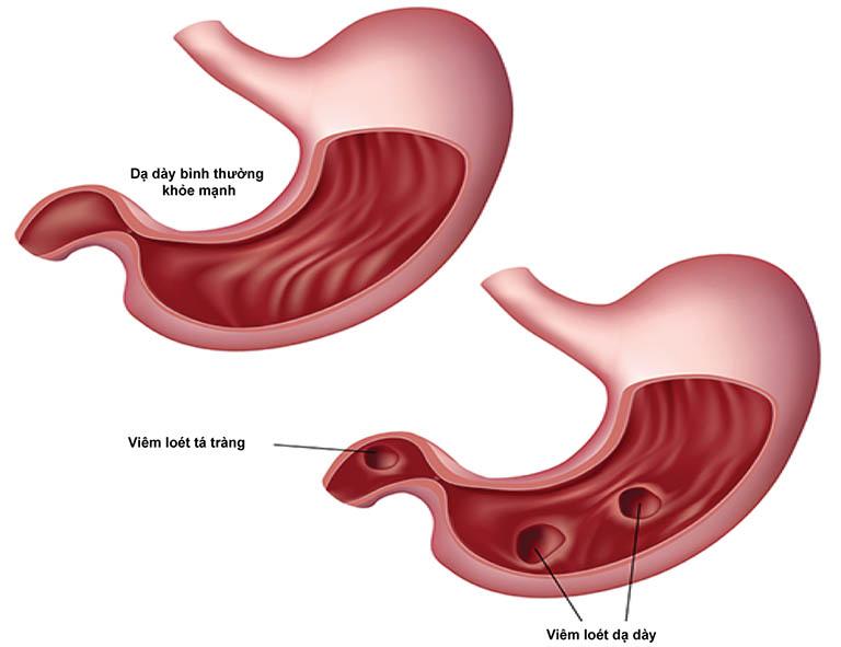 Viêm dạ dày tá tràng