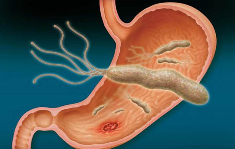 Dạ dày được xác định là nơi cư trú chính của vi khuẩn Hp.