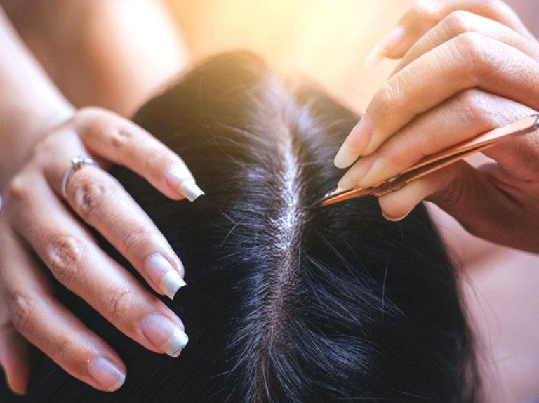 Bà bầu có nên nhổ tóc bạc không? - Chuyên gia giải đáp thắc mắc