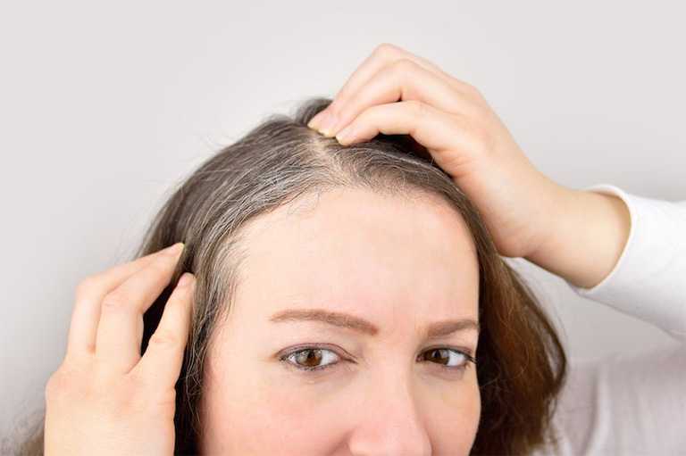 Khi mang thai, quá trình sản sinh melanin của tế bào melanocyte ở nang tóc dẫn đến hiện tượng tóc bạc hoặc tóc có màu nhạt hơn