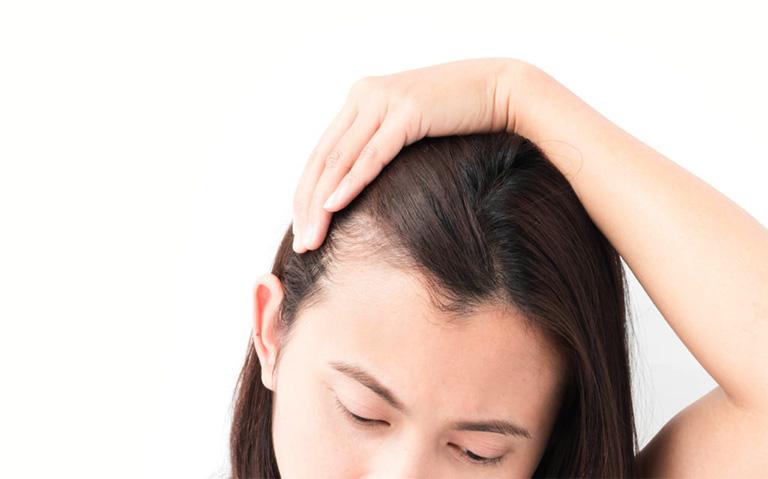 Việc nhổ tóc bạc có thể khiến bà bầu bị hói đầu nếu hành vi này lặp lại thường xuyên