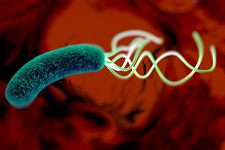 Nếu kết quả của các xét nghiệm cho thấy vi khuẩn Hp dương tính thì bạn đã bị nhiễm Hp trong dạ dày