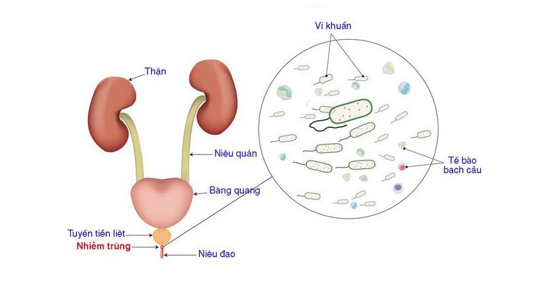 Viêm niệu đạo là bệnh viêm nhiễm xảy ra ở đường tiết niệu do sự xâm nhập của vi khuẩn hay vi nấm gây ra không ít sự khó khăn khi tiểu tiện