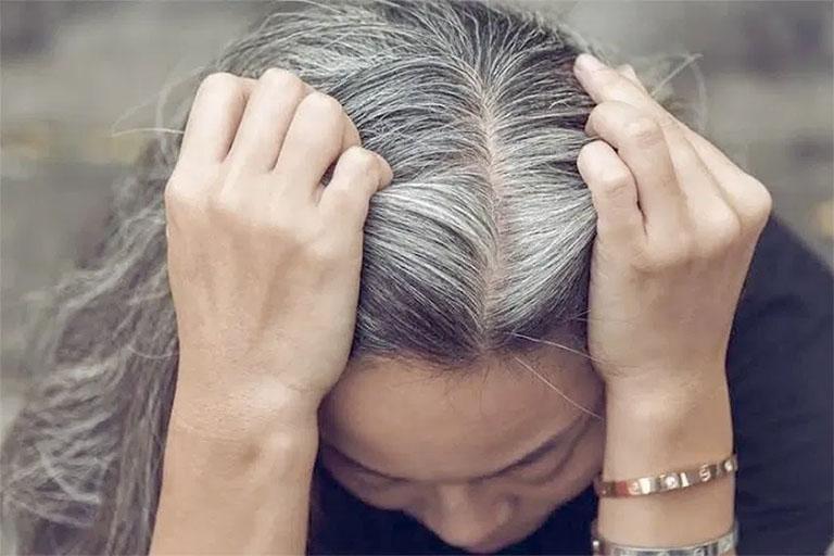 Tuy không phải là căn bệnh nguy hiểm nhưng tóc bạc sớm khiến không ít người mất tự tin khi tiếp xúc với đám đông