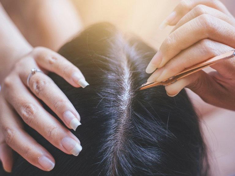 Tránh nhổ bỏ tóc bạc trong quá trình điều trị bởi việc này sẽ làm phá vỡ các nang chân tóc