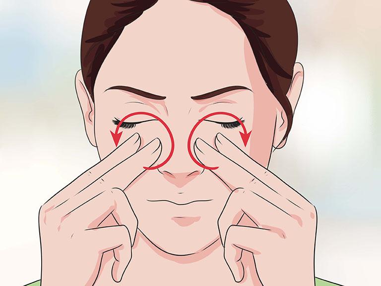 Polyp mũi không chỉ gây đau mũi mà còn kéo theo những cơn đau quanh vùng mũi và lan ra vùng thái dương