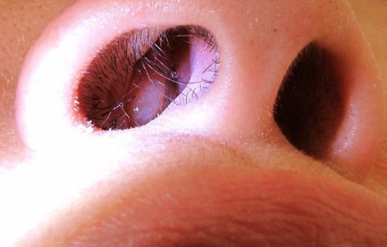 Sự xuất hiện của khối polyp trong mũi không gây nguy hiểm nếu được điều trị sớm và loại bỏ đúng cách
