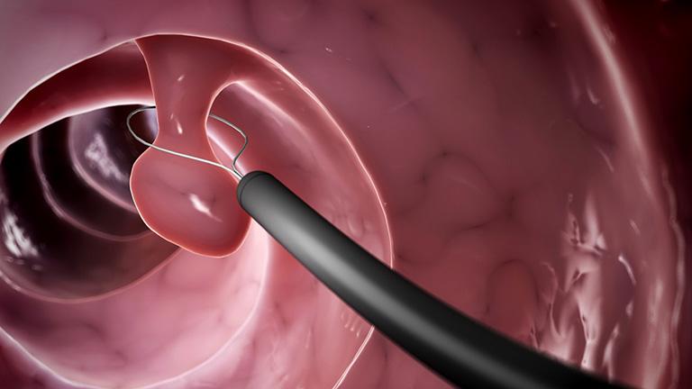 Phẫu thuật cắt bỏ polyp mũi thường được bác sĩ chỉ định cho các trường hợp khối polyp có kích thước lớn hoặc có nguy cơ xuất hiện biến chứng