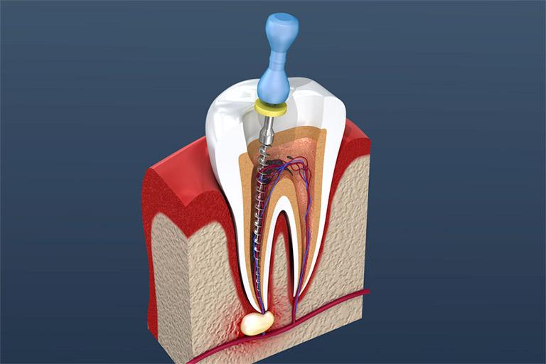 Lấy tủy răng là quá trình hút lấy phần tủy răng bị tổn thương hay bị hoại tử sau đó trám lại hoặc bọc răng sức mà không nhổ bỏ răng đau