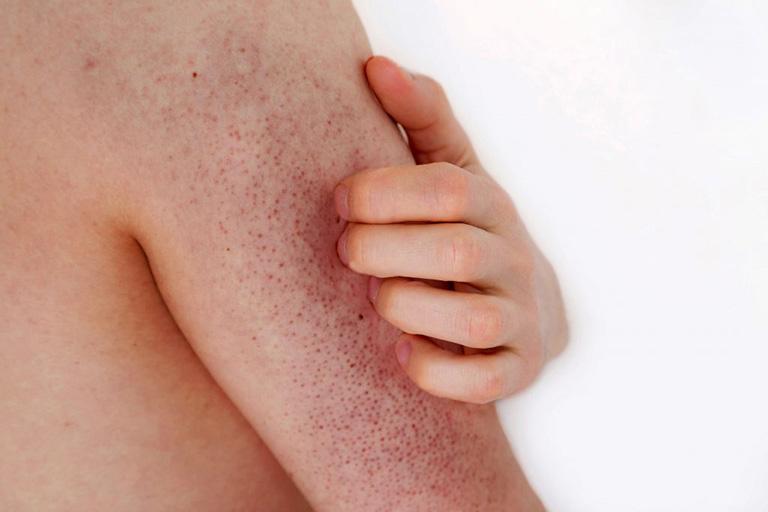 Dày sừng nang lông có chữa được không là một trong những thắc điển hình của các đối tượng mắc phải và đang đi tìm câu trả lời