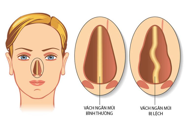 Lệch vách ngăn mũi có nguy hiểm không? Cần làm gì để khắc phục?