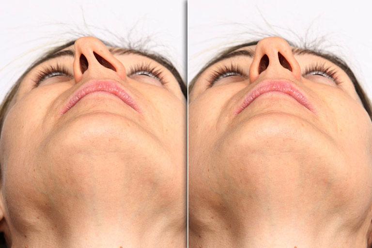 Lệch vách ngăn mũi là hiện tượng không quá nguy hiểm nhưng cũng có khả năng bạn đối diện với nhiều nguy hiểm khi bị lệch nặng và xuất hiện biến chứng