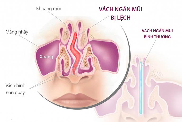 Lệch vách ngăn mũi là gì? Nguyên nhân và cách điều trị