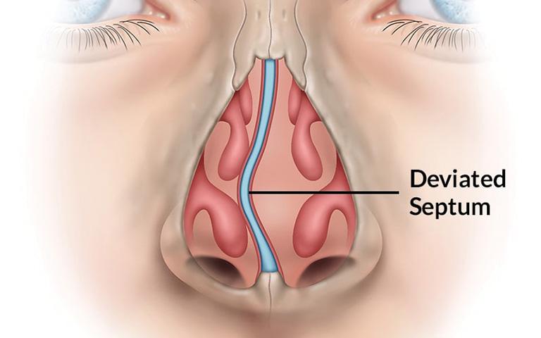 Phẫu thuật lệch vách ngăn mũi được chỉ định đối với trường hợp bị lệch nặng hoặc có nguy cơ xuất hiện biến chứng nguy hiểm