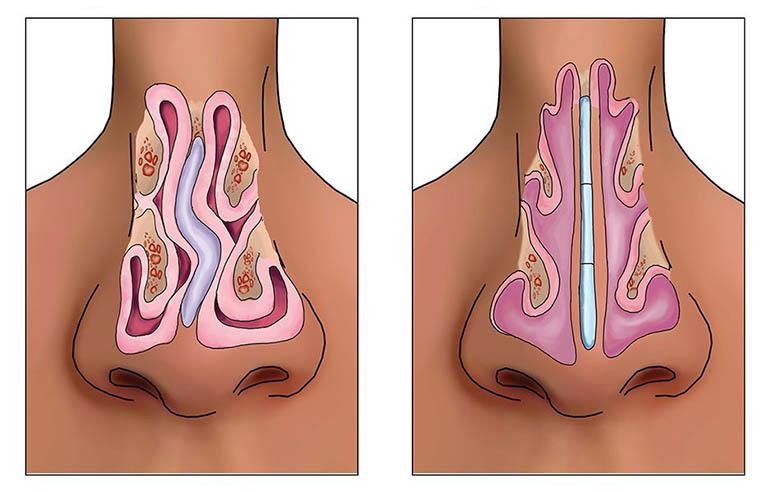 Phẫu thuật lệch vách ngăn mũi là phương pháp điều trị giúp chỉnh sửa lại vách ngăn mũi bị lệch sang một bên hoặc cả hai bên về phía hốc mũ