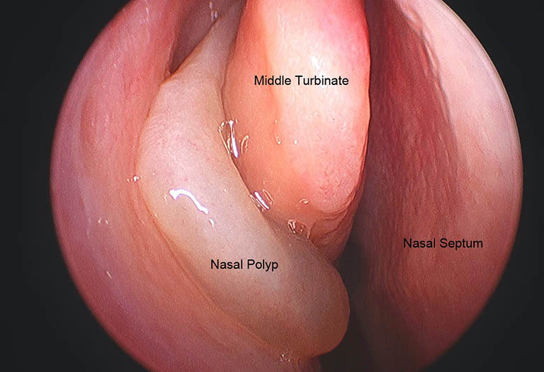 Polyp mũi là một dạng u lành tính