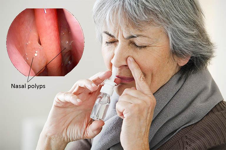 Phẫu thuật cắt polyp mũi được chỉ định cho các đối tượng có khối polyp chùm hoặc polyp đơn nhưng không có kết quả tốt khi điều trị bằng thuốc