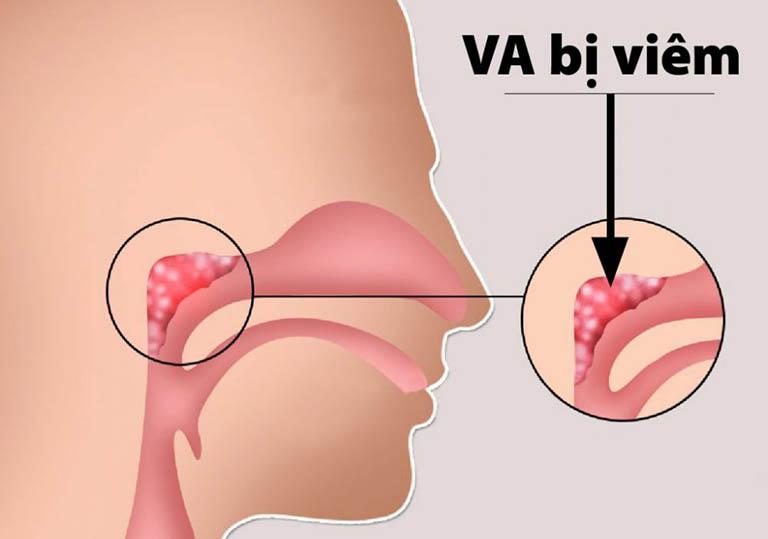 Đường hô hấp bị nhiều vi khuẩn xâm nhập khiến VA hoạt động quá tải và gây ra tình trạng viêm nhiễm VA